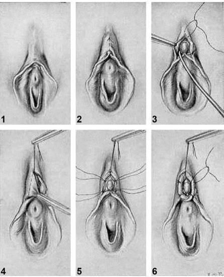 Klitoropeksi
